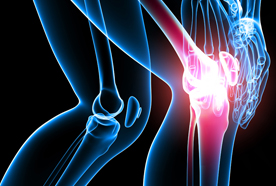 掰手指关节会导致关节炎吗?  Does cracking your knuckles cause arthritis?